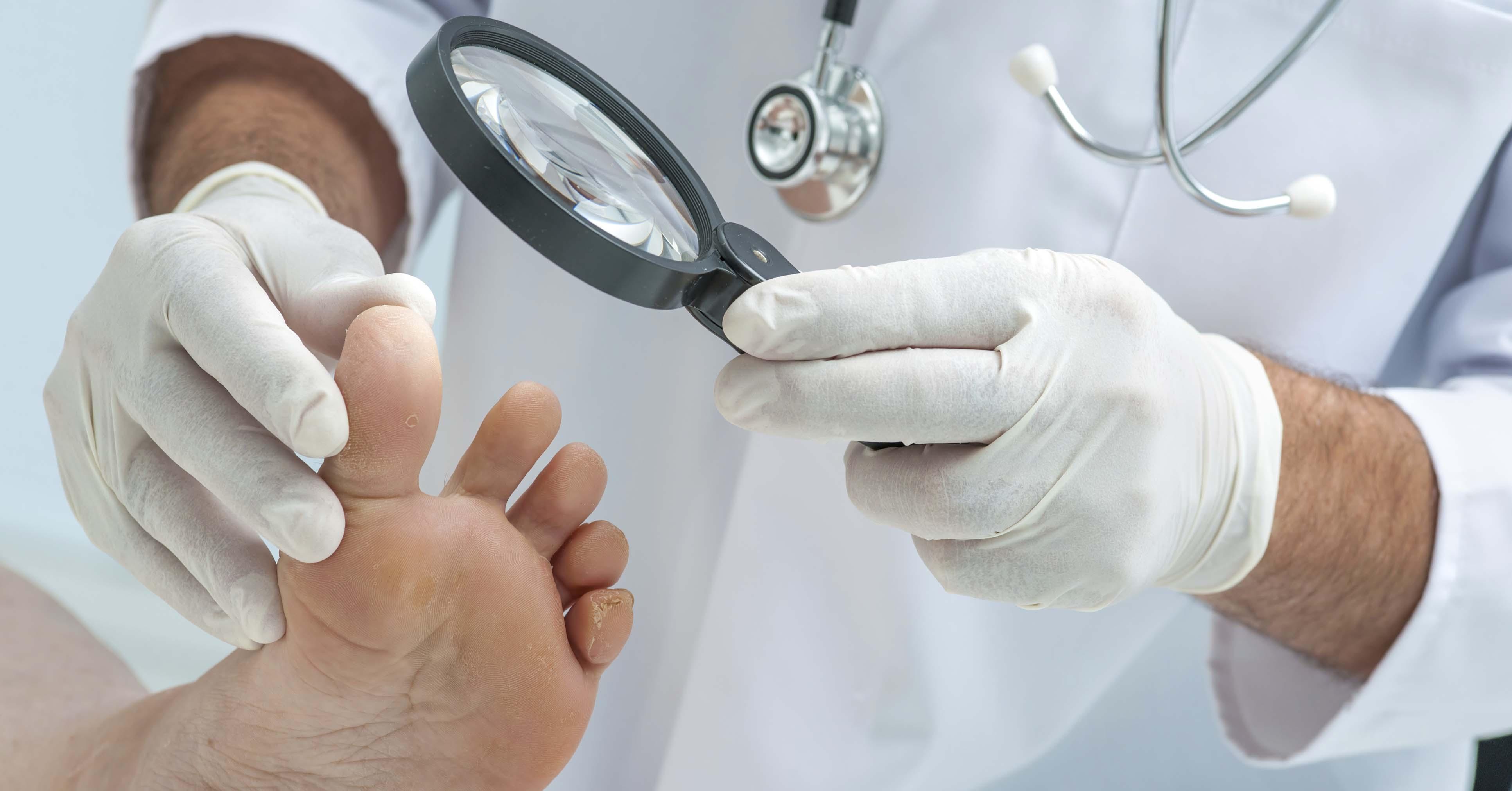 найти клинику по лечению грибка кожи