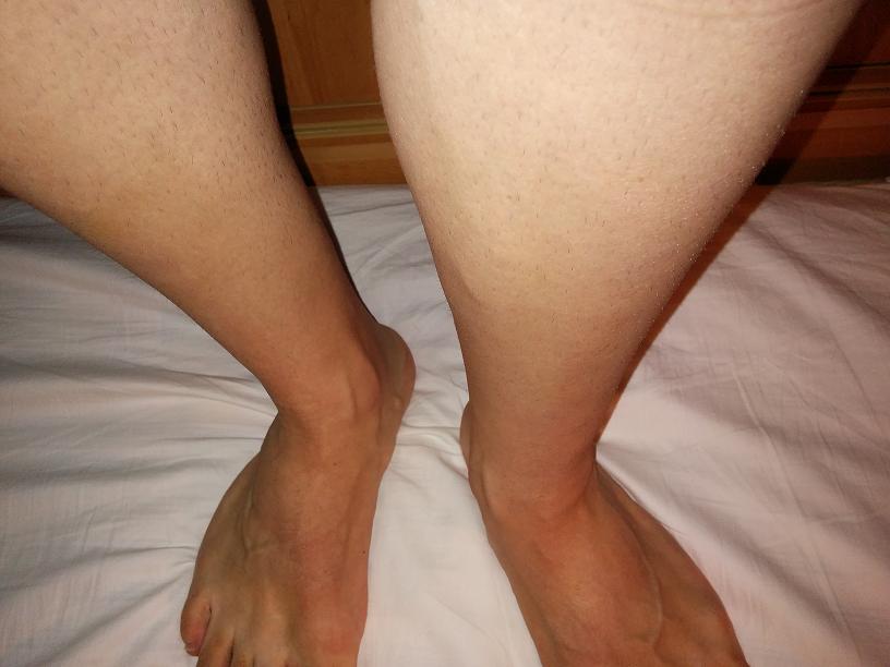 Варикоз ног лечение дома