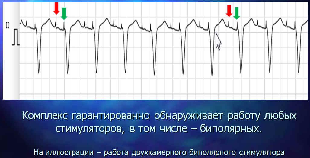 Обнаружение импульса биполярного ИВР, ЭКС, кардиостимулятора