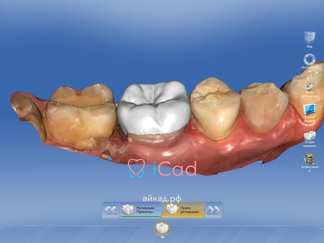 cad cam системы в стоматологии, современные cad cam, кад кам системы в стоматологии, обучение cam системам, айкад.рф, icad.store, продажа стоматологического оборудования, москва