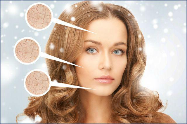 Сухая кожа лица - особенности ухода в зимнее время