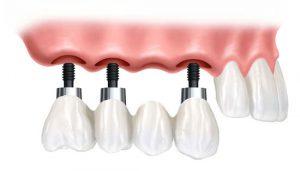 Коронки для зубных имплантов