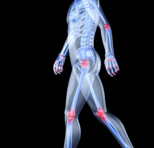 Как проявляется остеоартроз