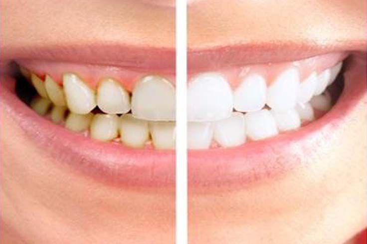 Здоровые зубы после стоматологии