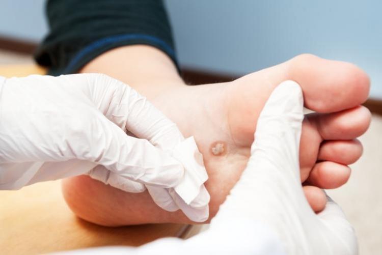 Могут ли бородавки на ноге и руке перерасти в онкологию