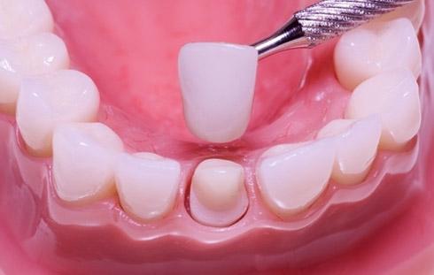 Коронка на зуб, фото