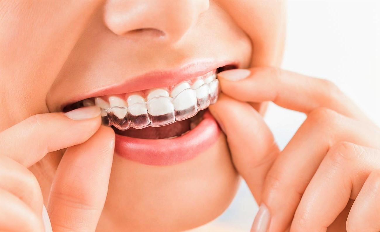 Виды элайнеров Клиника Доброго Стоматолога