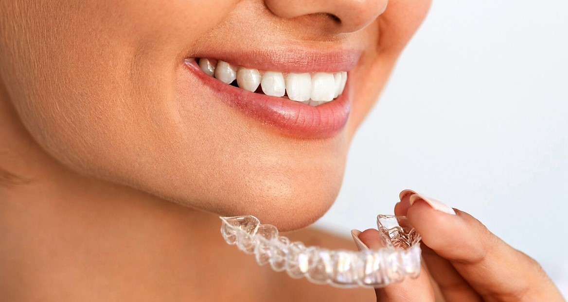 Элайнеры от Клиники Доброго Стоматолога