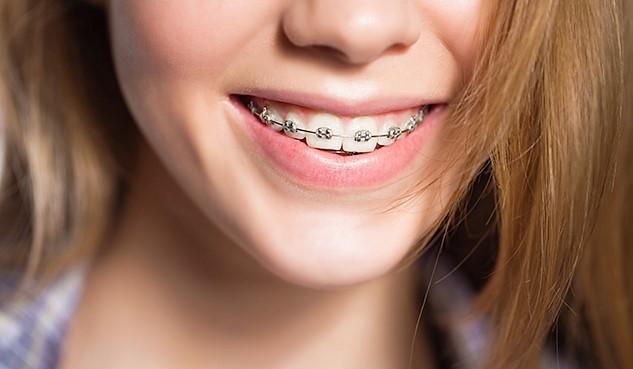 Металлические брекеты от Клиники Доброго Стоматолога