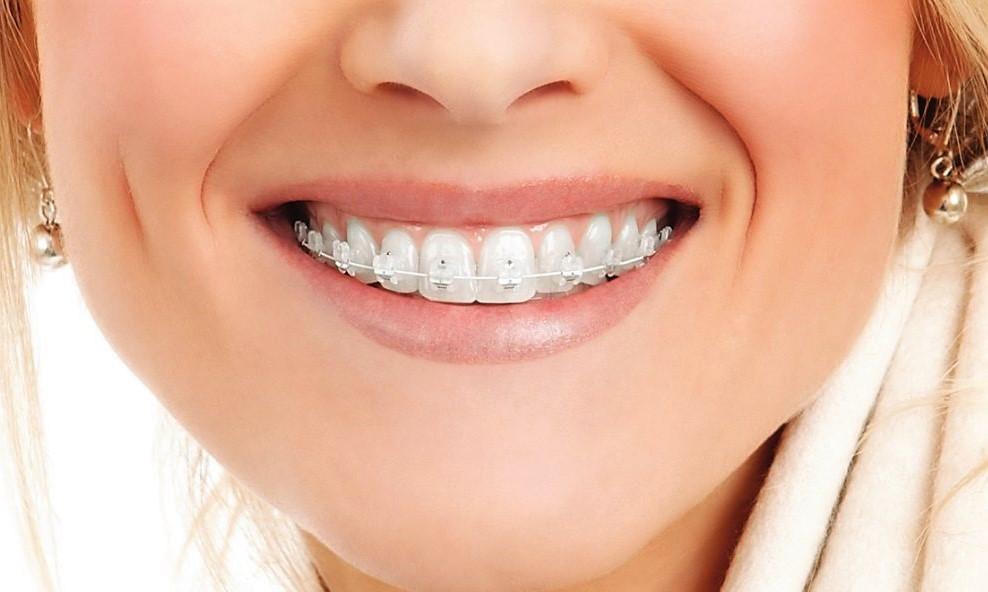 Сапфірові брекети Клініка Доброго Стоматолога