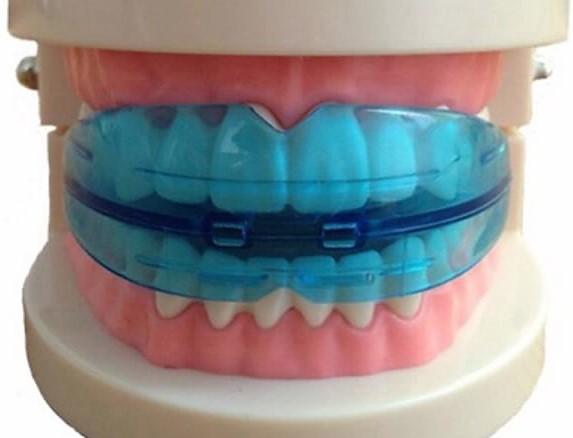 Трейнеры для зубов Клиника Доброго Стоматолога