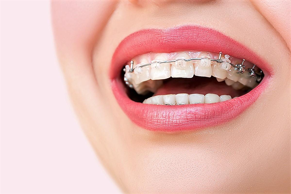 Керамические брекеты Клиника Доброго Стоматолога