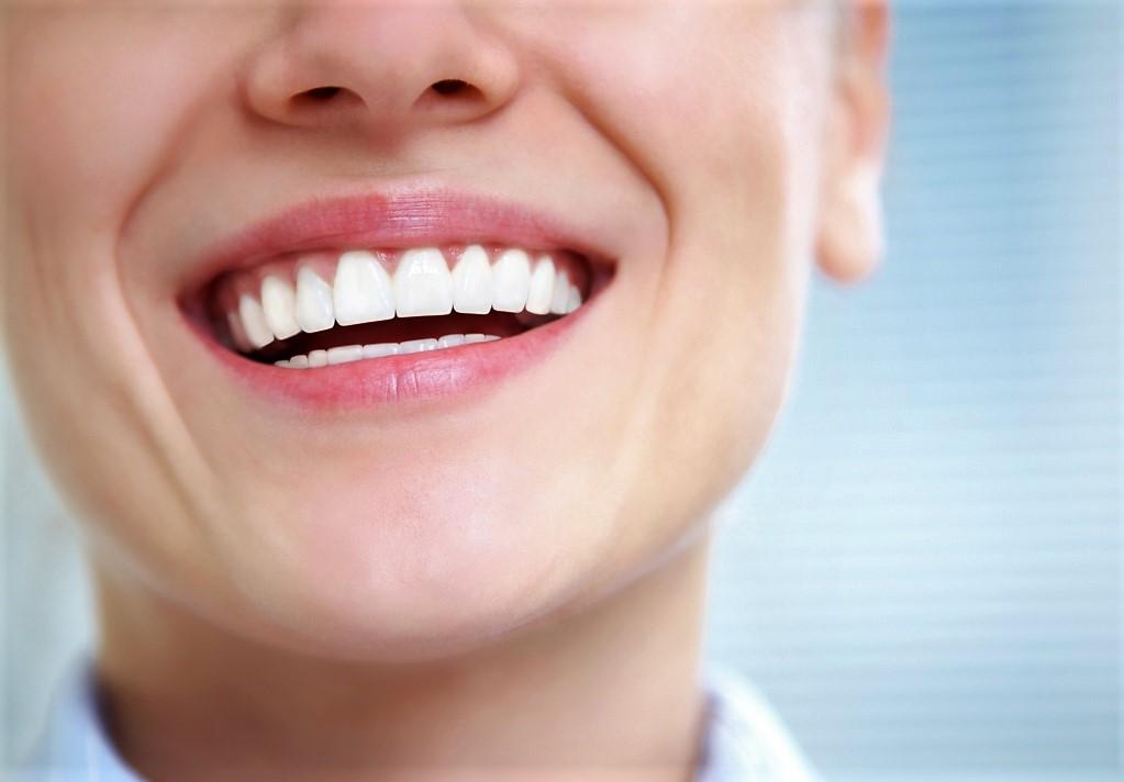 Виды выравнивания зубов КДС