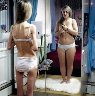 Фото схудлих на Редуксині до і після схуднення