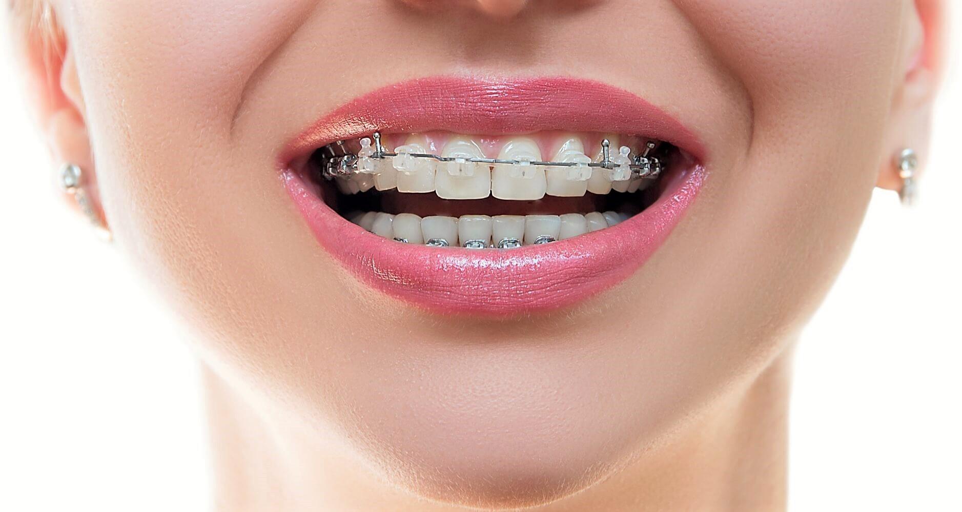 Види брекетів від Клініки Доброго Стоматолога