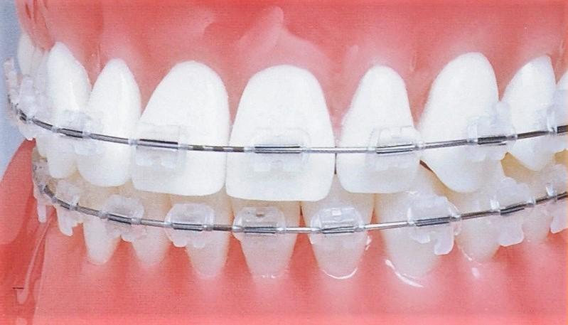 Види керамічних брекетів Клініка Доброго Стоматолога