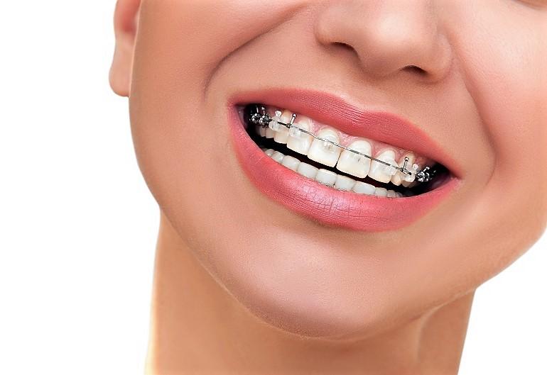 Догляд за брекетами Клініка Доброго Стоматолога