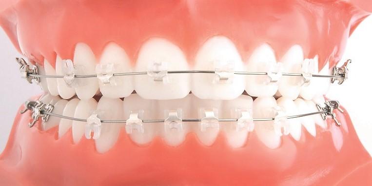 Виды самолигирующих брекетов Клиника Доброго Стоматолога