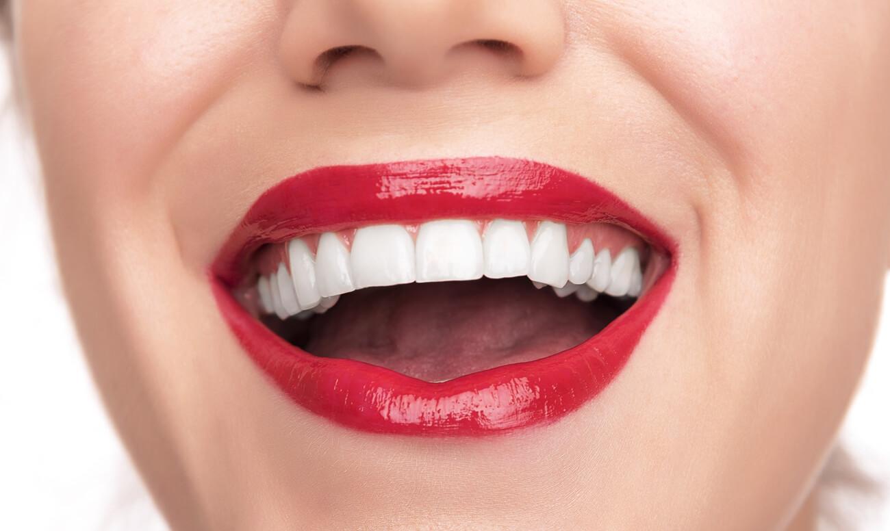 виниры на зубы.jpg