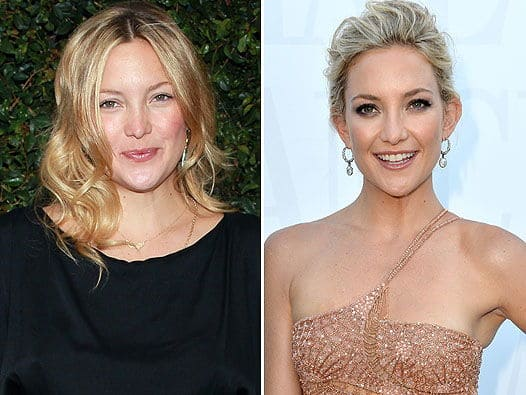 Редуслим фото похудевших до и после