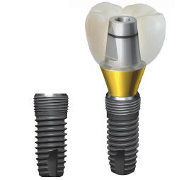 Особенности имплантов Dentium Super Line