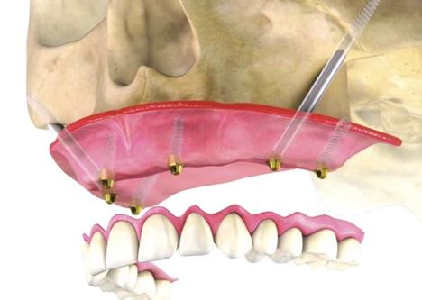 Как вернуть зубы за 1 день