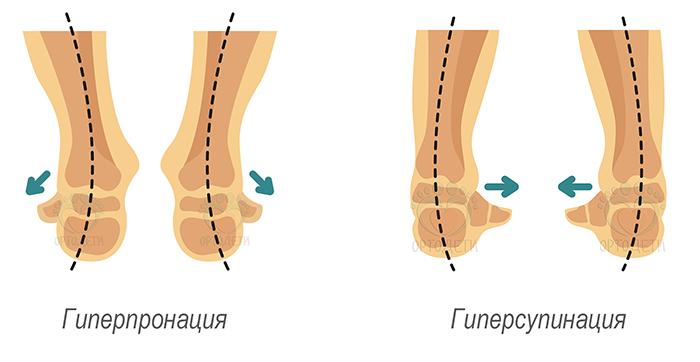 Левая нога короче