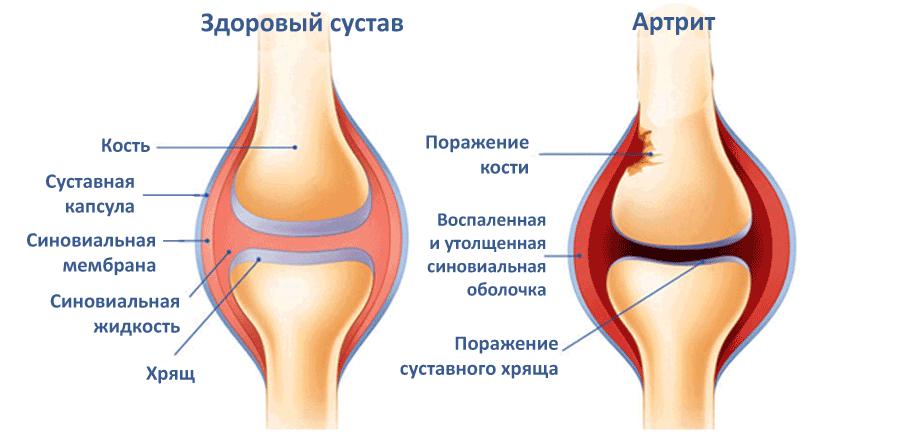 lechenie-artrita.png