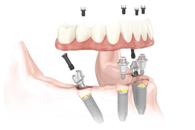 Имплантация зубов Все на четырех во Львове