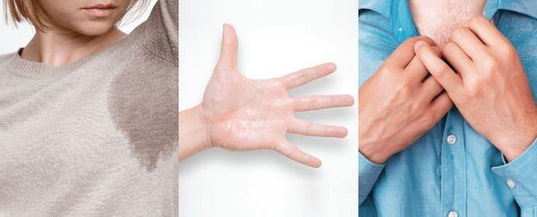 9 способов борьбы с гипергидрозом