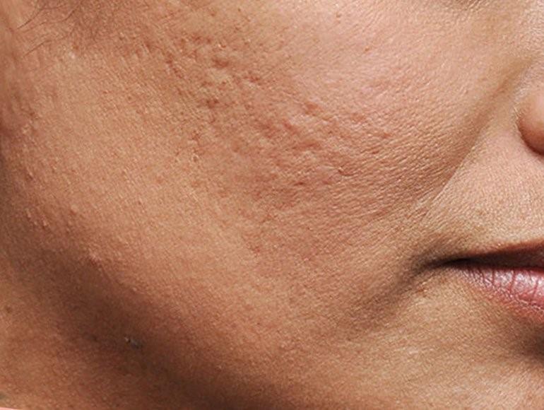 10 методов лечения шрамов от угревой сыпи