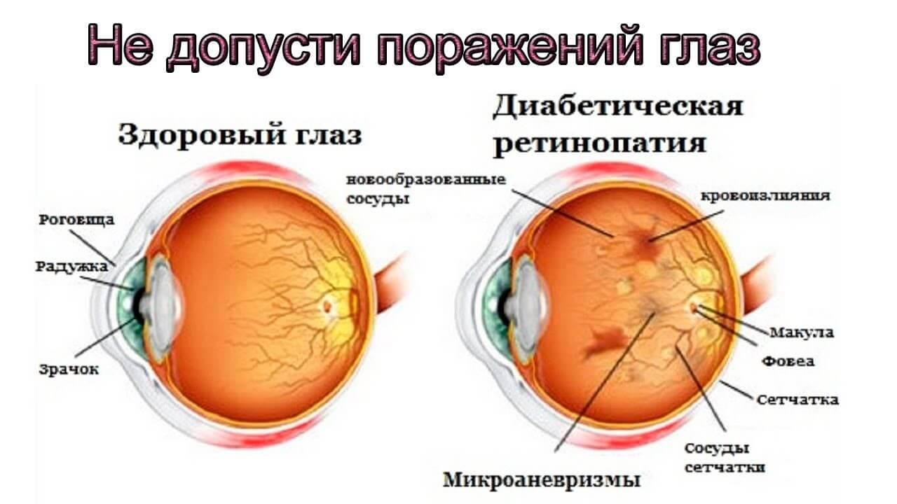 diabeticheskaya-retinopatiya.jpg