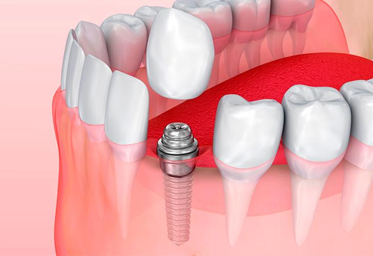protezirovanie-ili-implantaciya-zubov.jpg