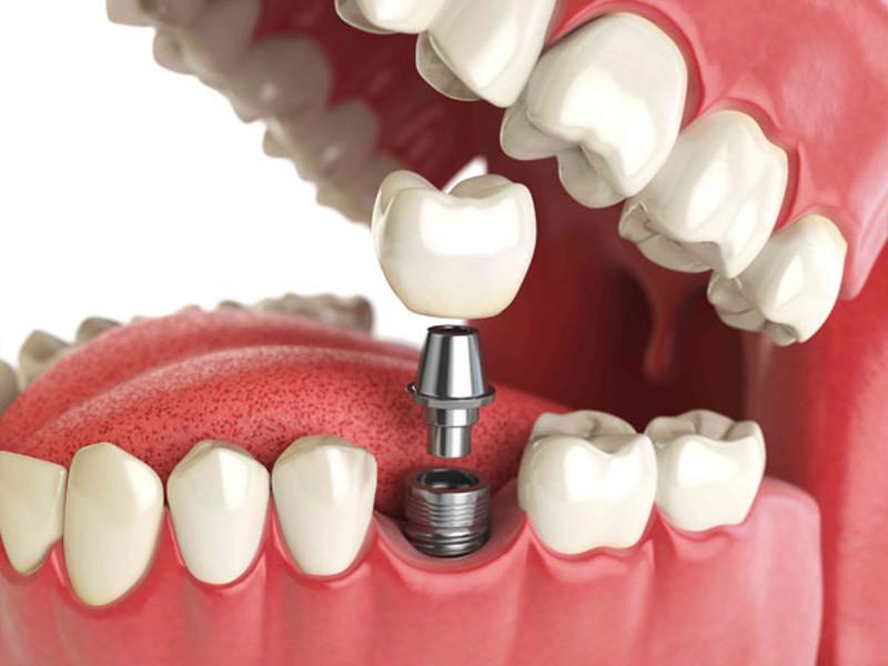 lechenie-zubov-v-Cherkassah-Bagita.jpg