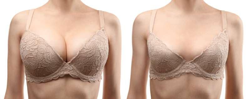 Узнайте больше об уменьшении груди